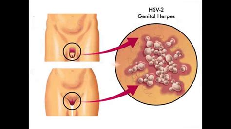 can you get chlamydia from a bathtub natural herpes treatment remove herpes naturally youtube