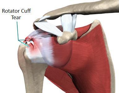 tears of salt a doctor s story books rotator cuff tear peninsula sports medicine
