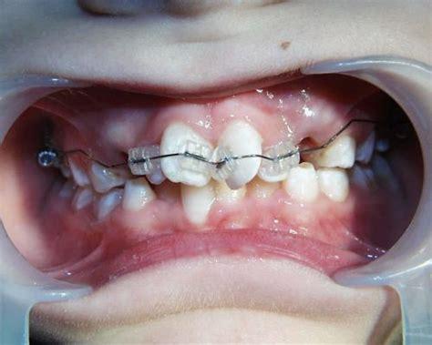 gestell zahnspange faq 220 bersicht behandlungsmethoden kfo praxis dr