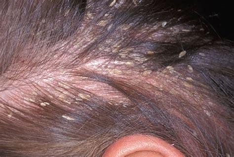 seborrhoeic dermatitis   dermatitis lsah clinic