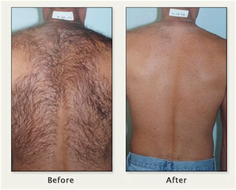 male genital hair removal before after photos male genital hair removal before after photos tired of