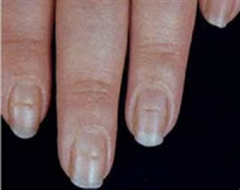 brittle nails point to thyroid problem the peoples pharmacy healthticket ridges in your nails