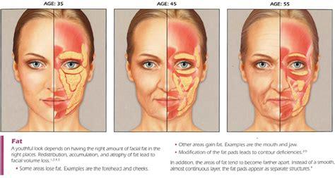aging jaw line aging jaw line aging jaw line sculptra dr monica scheel