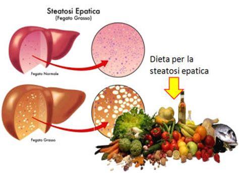 sintomi epatite alimentare cirrosi epatica sintomi cause diagnosi dieta rischi e