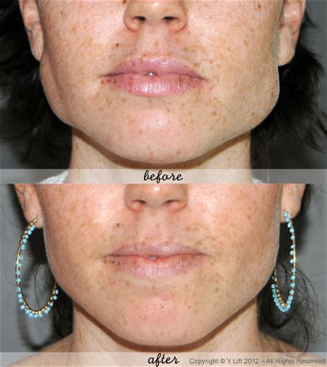 the square jaw line benefits of botox reduce square jawline y lift ylift