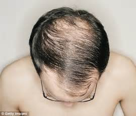 thin hair on top male baldness thinning on top it could be high blood