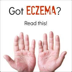 easy how the inside can heal your and your books 1000 images about eczema remedies and treatments