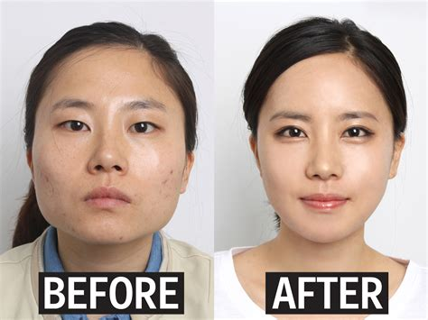 photo gallery before and after cosmetic surgeon in the eyelid surgery in south korea business insider