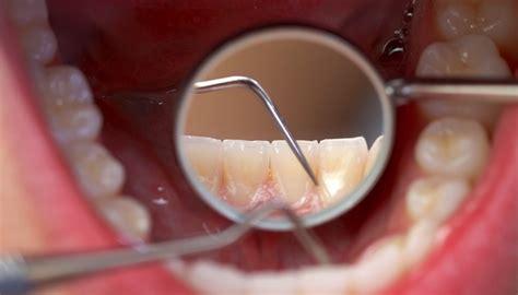 Normal Membersihkan Karang Gigi Cara Menghilangkan Karang Gigi Secara Alami Dan Resipi