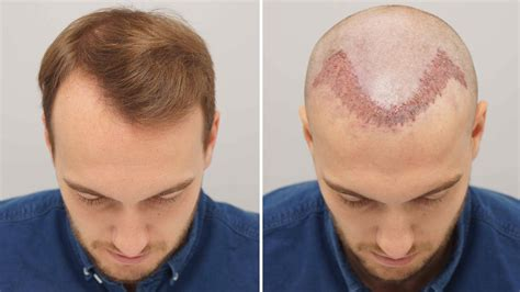 best haircuts fir transplanted hair behind the scenes of a 163 7 500 hair transplant mirror