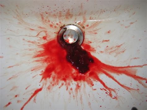 Spitting Up Blood And Blood In Stool by Coughing Up Blood While On Blood Thinners Can Ibuprofen