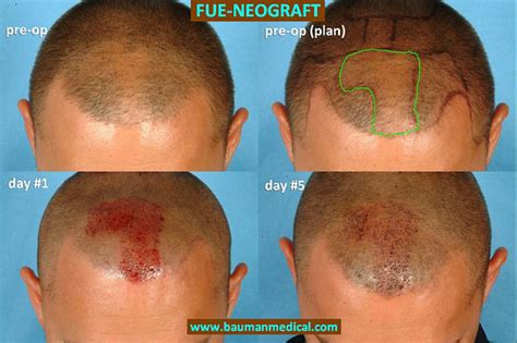 does fue hair transplant work neograft hair transplant will this new device make fue