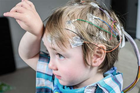 epilepsy expectancy cerebral palsy and seizures cerebral palsy guidance