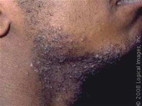 pimples ingrown hair private hair bumps on private area men search results new