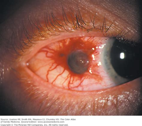 The Color Atlas Of Family Medicine 2e 2013 Usatine Et Al chapter 14 scleral and conjunctival pigmentation the color atlas of family medicine 2e