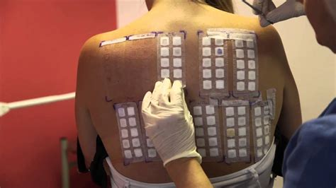 patch test skin allergy testing using patch tests