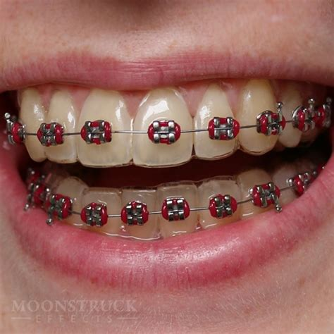braces colors for teeth braces colors pink www imgkid the image kid has it