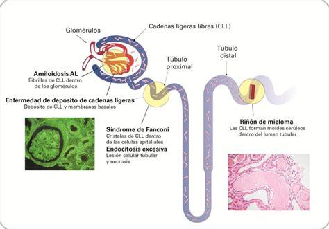 cadenas ligeras de mieloma binding site informaci 243 n general sobre el ri 241 243 n y los