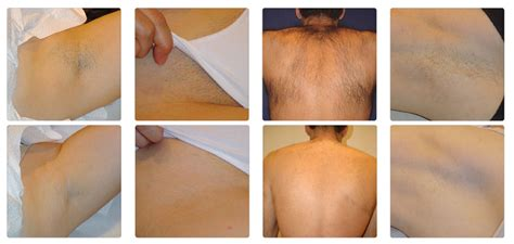 brazilian laser hair removal pictures full brazilian laser hair removal