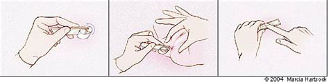 Stool Test For Pinworms by Common Intestinal Parasites American Family Physician