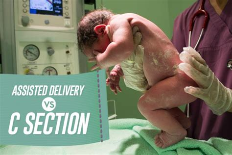 c section vs normal delivery assisted delivery vs c section what s the difference