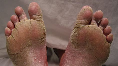 kill athletes foot in shoes how to treat athlete s foot while enjoying your day foot