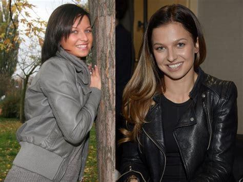 anna lewandowska przed i teraz anna lewandowska miała operację plastyczną krzysztof