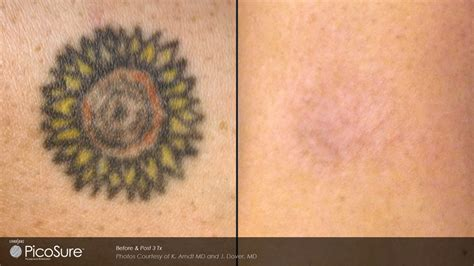 picosure laser tattoo removal baltimore md