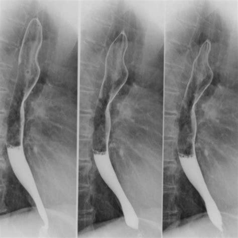 Cabinet Radiologie 12 by Imagerie M 233 Dicale Du Vignoble La Radiologie Avec Produit