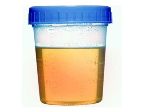y protein in urine protein in urine new health guide