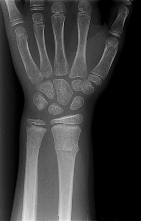 Fracture Wrist - Fracture Treatment Fractured Wrist Treatment