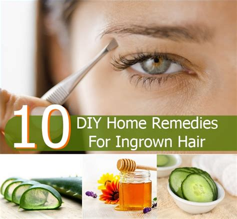 top 10 diy home remedies for ingrown hair diy home