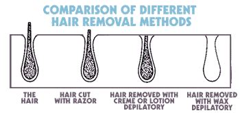Different Types Of Hair Removal by Hair Removal Lulu S Makeup