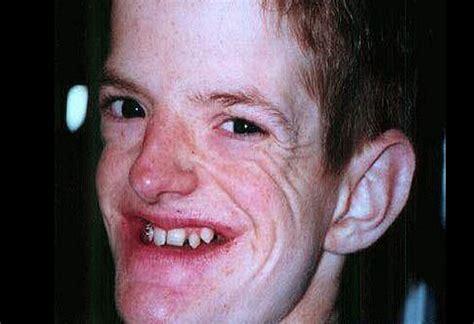 viejos negros panzones vergudos imagenes chistosas para los 15 hombres m 225 s feos del mundo revisa los casos
