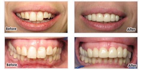 comfort dental southfield comfort dental southfield 28 images comfort dental in