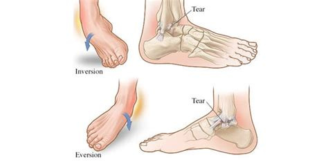 sprained ankle sprained ankle types