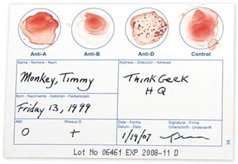 Mba 20 Blood Test by Diy Blood Typing Test Kit