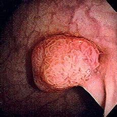 mucoid plaque cleanse