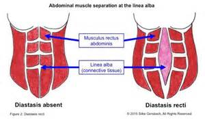 did you check your belly for abdominal separation