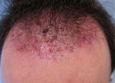 do ingrown hair hurt do ingrown hair hurt pinterest the world s catalog of