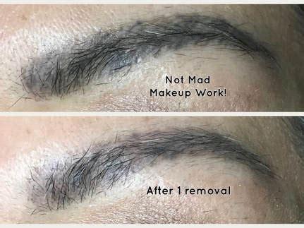 tattoo removal san antonio non laser removal san antonio mad makeup