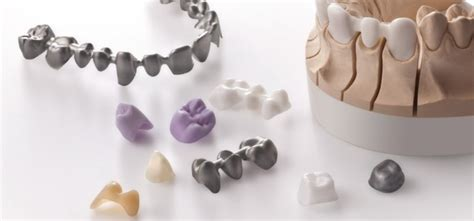 carlos ceramic dental lab ceramics dental lab in miami florida and the carlos