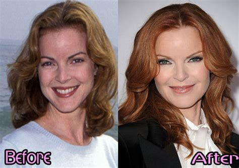 Marcia Cross Fights To Keep Photos From Being Published by Marcia Cross Plastic Surgery Before After Photos