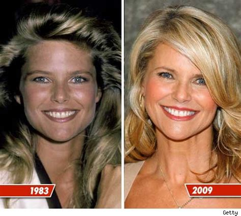 Christie Brinkley Gets Emergency Surgery by Chatter Busy Christie Brinkley Plastic Surgery
