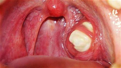 white spots on back of throat jpg bumps on back of throat std www pixshark com images