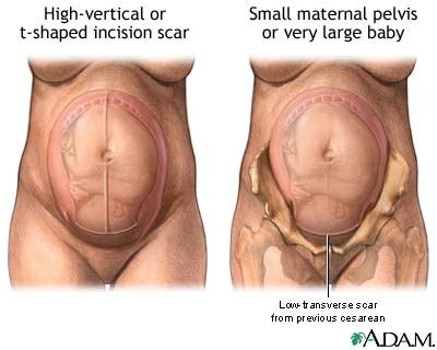 hysterectomy after c section naunur211 blog 5 nau students giving an overview about