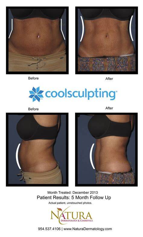 african american skin disorders fort lauderdale 17 best images about coolsculpting fort lauderdale on