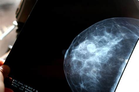 Z Techs Breast Cancer Scanner by Some Breast Cancer Patients With Low Genetic Risk Could