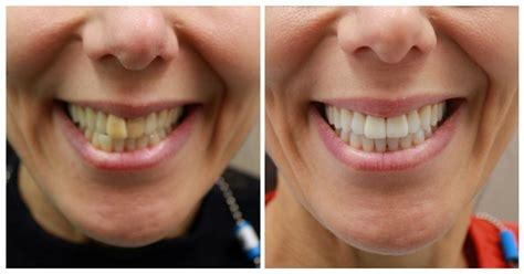 invisalign cost  nyc invisalign special  nyc dental