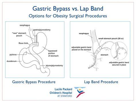 gastric bypass diagram roux en y diagram gastric sleeve diagram elsavadorla